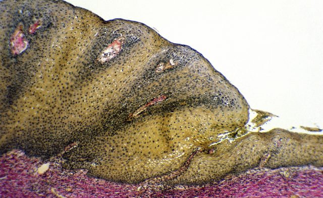Condyloma acuminata, or anogenital warts, are generally attributed to HPV 6 and 11; however, in patients who are HIV-positive, they have also been associated with high-risk serotypes 16, 18, 31, 33, and 35.20,21 Approximately 630 million new cases of HPV occur annually worldwide, and 30 million of these individuals develop anogenital warts, with the risk being especially elevated in patients who are HIV-positive and individuals who are immunocompromised.22 In a Brazilian cross-sectional study, 31% of men who were HIV-positive had anogenital warts.22 Irregular antiretroviral treatment and co-infection with herpes simplex virus were associated with a higher risk for developing anogenital warts.22 More severe anogenital wart presentation has been reported in patients who are HIV-positive, with lesions being larger, more numerous, treatment-resistant, and prone to recurrence, even in the setting of effective HAART.21 Nevertheless, treatment remains the same in this population as in non-immunocompromised individuals.23 Photo Credit: Medical Images/Dr Isabelle Cartier/ISM