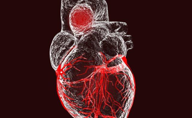 Aortic aneurysm, heart