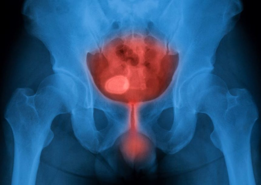 An x-ray of the bladder