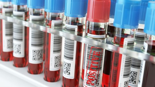 Blood sample, test tubes
