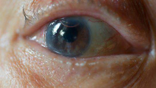 Cataract formation in eye