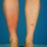 cellulitis on legs