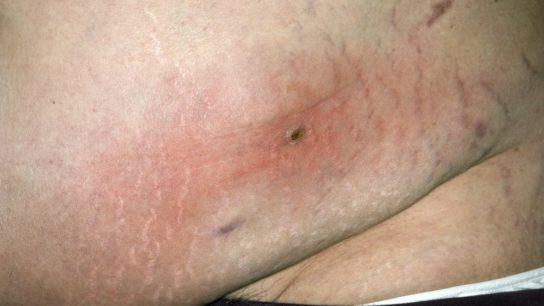 cellulitis on the abdomen
