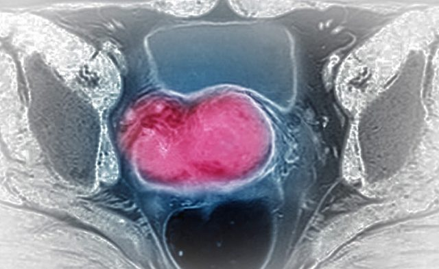 Cervical Cancer MRI