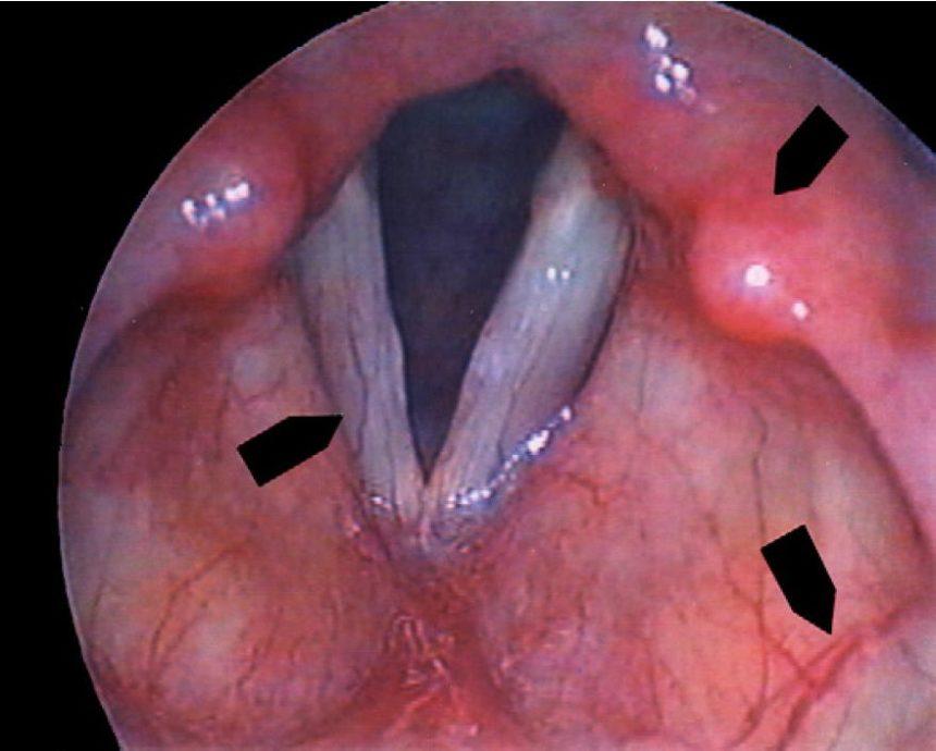 Laryngitis - Infectious Disease Advisor