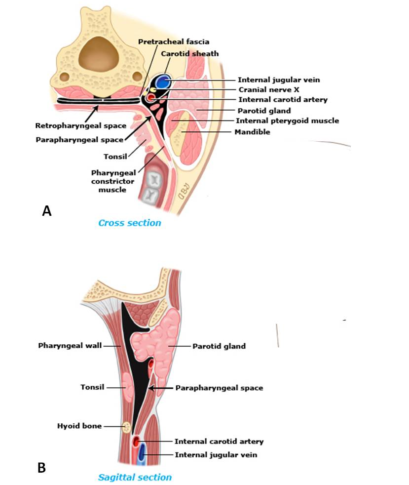 Infections of the oral cavity, neck, and head - Infectious