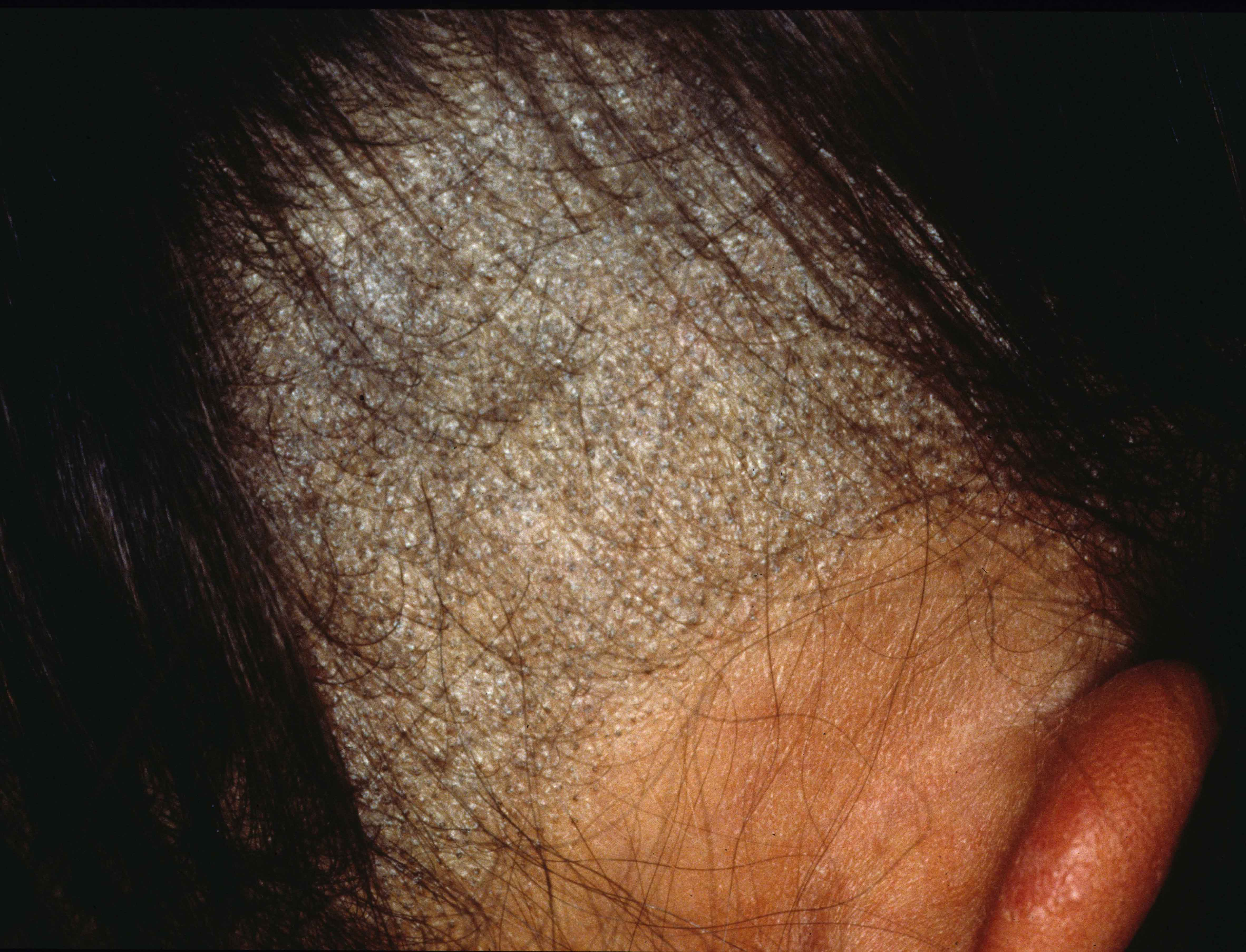 Superficial Mycoses: Dermatophytosis - Infectious Disease