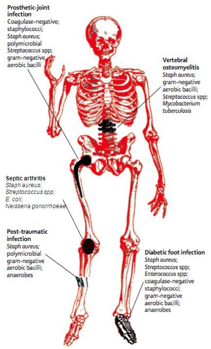 Osteomyelitis - Infectious Disease Advisor