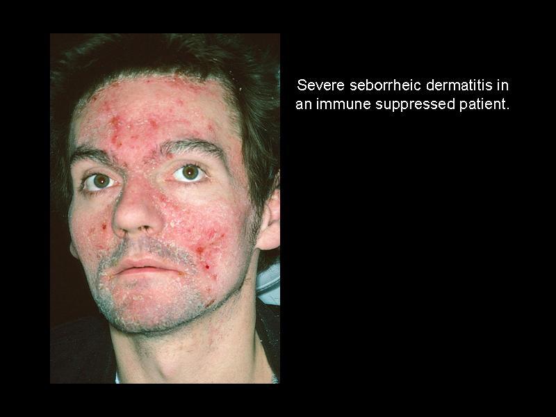 Seborrheic dermatitis - Infectious Disease Advisor