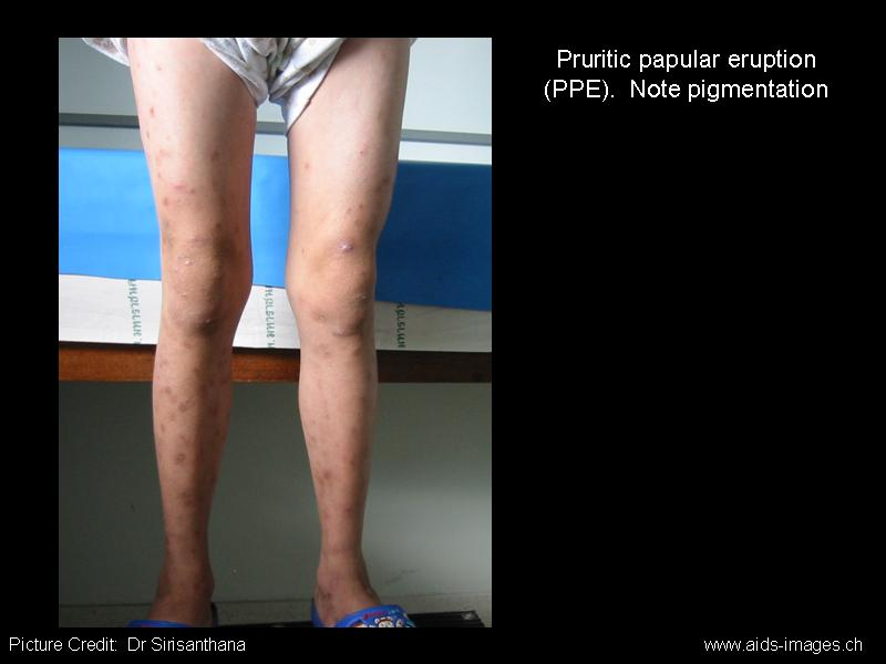 Pruritic Papular Eruption Ppe Of Hiv Infectious Disease