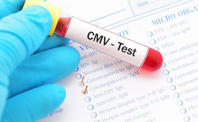 CMV test
