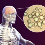 Cryptococcal.meningitis in human x-ray