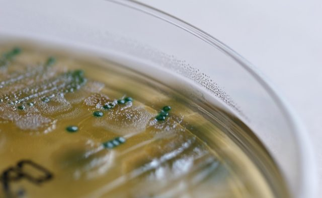 Culture with pseudomonas aeruginosa and enterococci