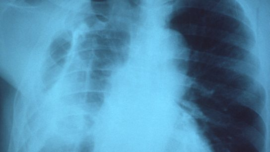 Presence of a right fibrothorax, possibly due to a previous empyema.