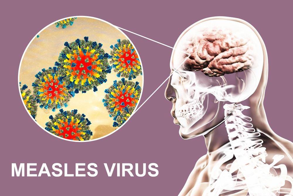 Decline of Subacute Sclerosing Panencephalitis Mortality Linked ...