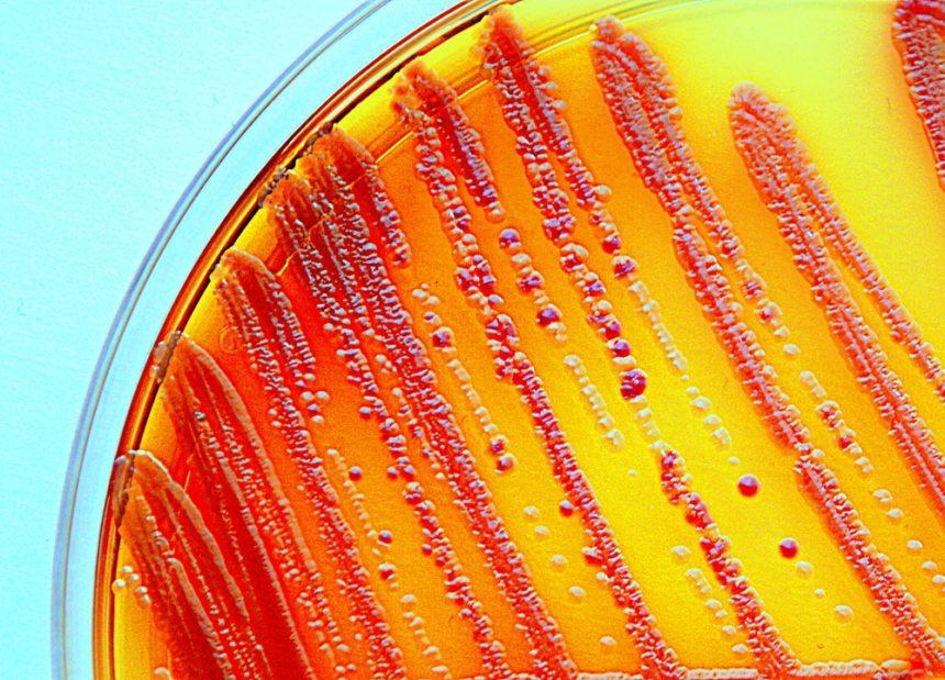 enterobacteria, petri dish, bacteria