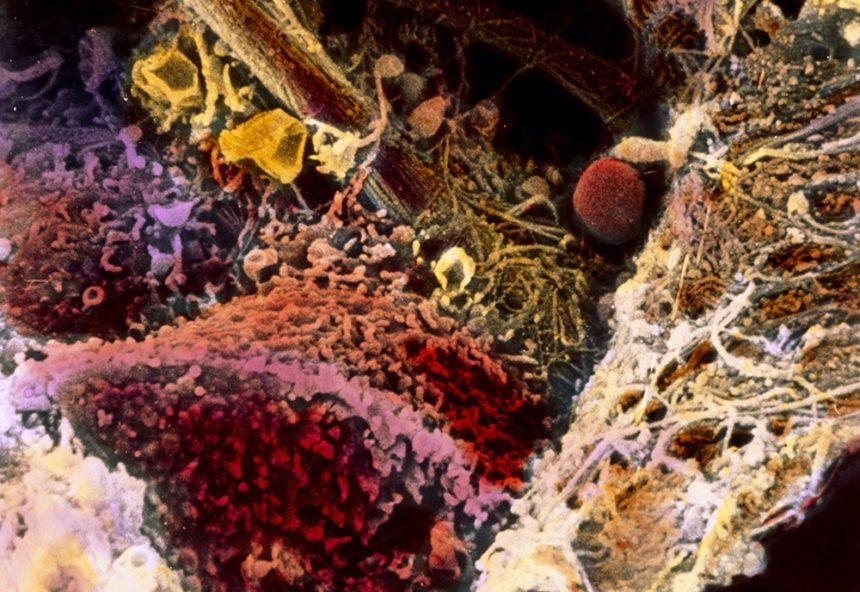fibrosis-liver-tissue