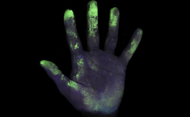 Bacteria shown on hand under black light
