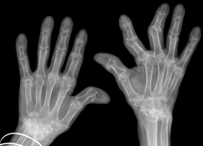 Hand xrays showing advanced rheumatoid arthritis