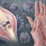 HBV and Rheumatoid Arthritis
