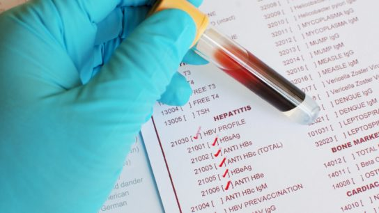 Hepatitis Blood test