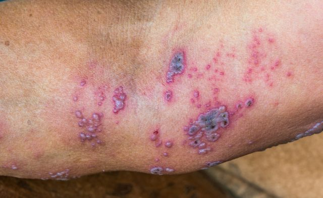 Herpes zoster virus on arm