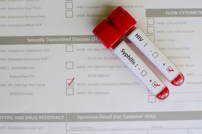 HIV and syphilis blood test