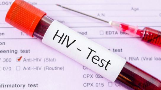 HIV test, blood sample