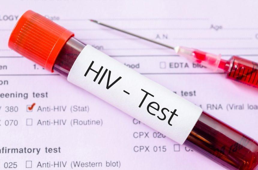 HIV test, blood sample