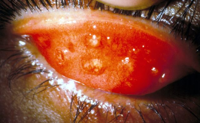 Inflamed eyelid in trachoma