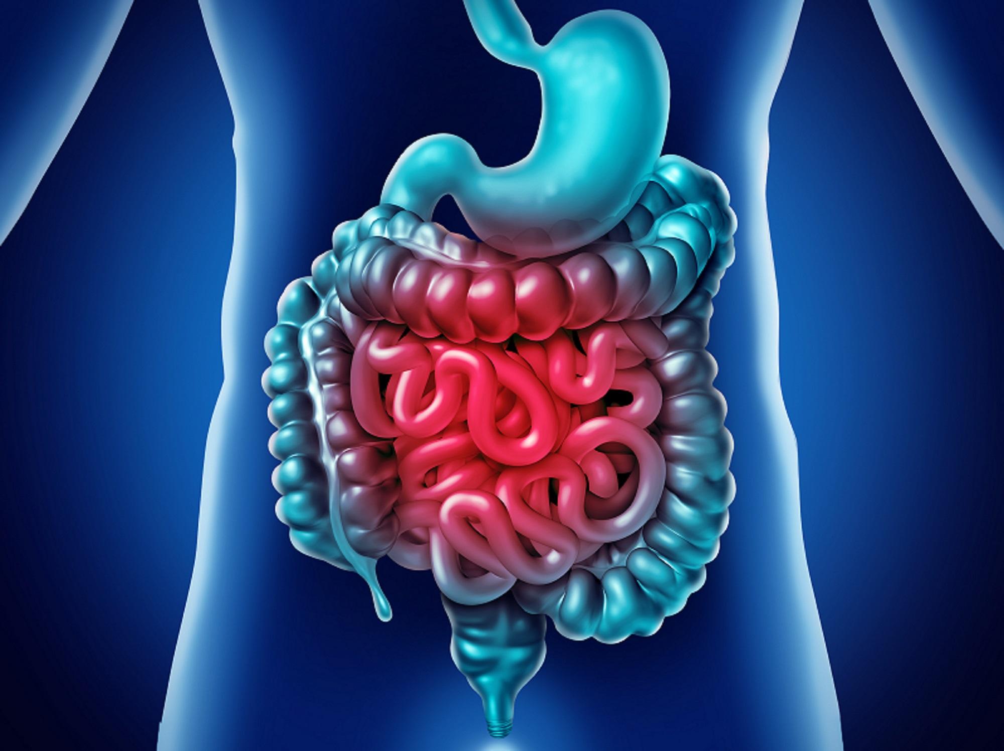 Mononucleosis syndromes - Infectious Disease Advisor