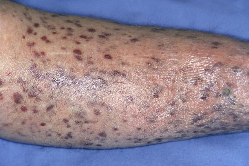 Karposi Sarcoma of the leg