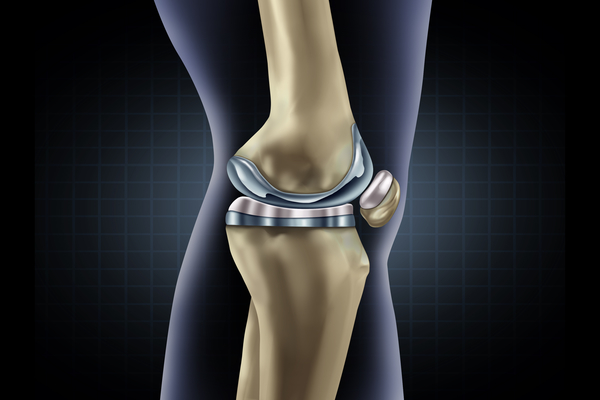 Extended antibiotic use safe after total knee arthroplasty