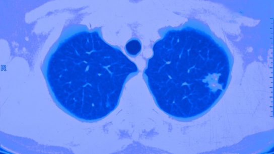 Lung cancer, CT