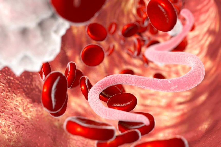 Microfilaria worms in bloodstream