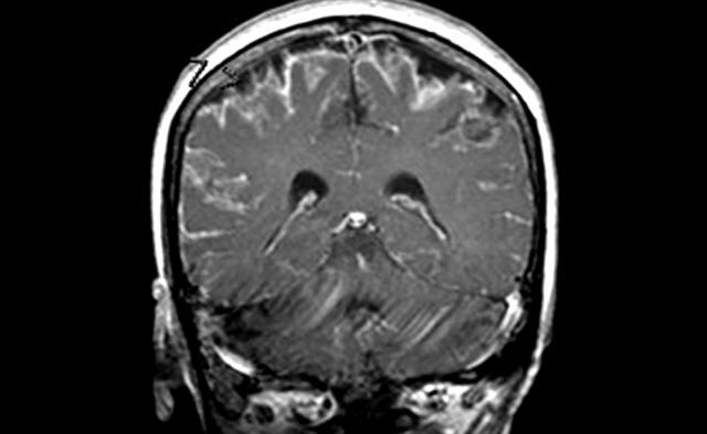 MRI of meningitis