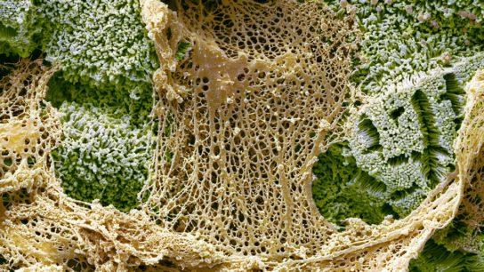 Mucin secretion in the small gut