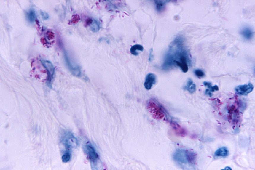 Mycobacterial skin infection
