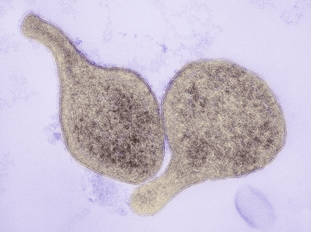 Mycoplasma genitalium: Challenges in Diagnosis and Treatment ...