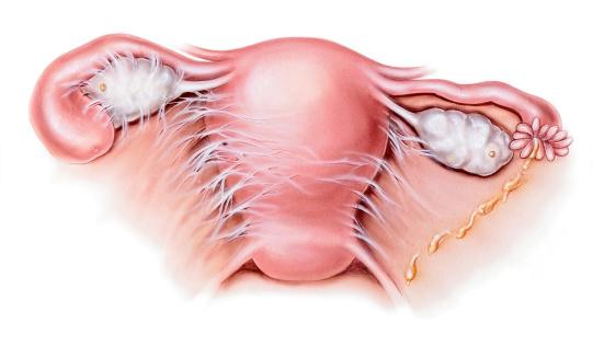 pelvic inflammatory disease, uterus
