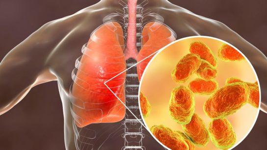 pneumonia, bacteria, lungs