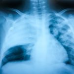 Pneumonia x-ray radiograph chest x-ray