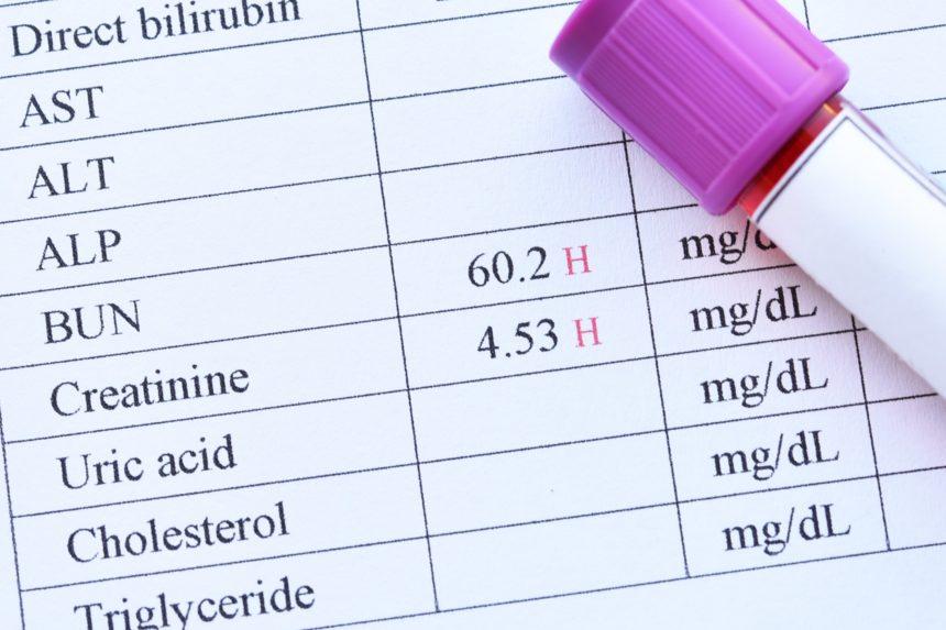 Renal Function Blood Test Order