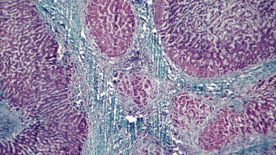 Light microscopy depicting viral hepatitis and cirrhosis
