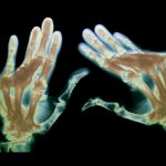 severe rheumatoid arthritis in all of the fingers