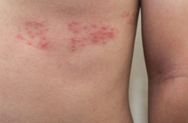 Herpes zoster, or shingles, is a reactivation of a previous herpes varicella-zoster virus infection. It can be one of the earliest manifestations of HIV. A longitudinal study showed an incidence of 29.4 cases per 1000 person-years among people seropositive for HIV vs 2.0 cases per 1000 person-years among control participants who were seronegative for HIV.3 Shingles risk and severity may be increased with increasing immunosuppression.4 Because shingles has a distinctive disease course and lesions, clinical diagnosis is usually accurate, but laboratory studies may be required for confirmation.5 Patients often first experience pain along one of the sensory nerves of the skin, followed by a painful rash several days later.6 The rash begins with grouped vesicles confined to 1 dermatome or spread over 2 adjacent dermatomes. The vesicles eventually crust over and then heal 3 to 4 weeks later, but may result in significant scarring. Pain sometimes persists after resolution of the vesiculation (ie, postherpetic neuralgia).