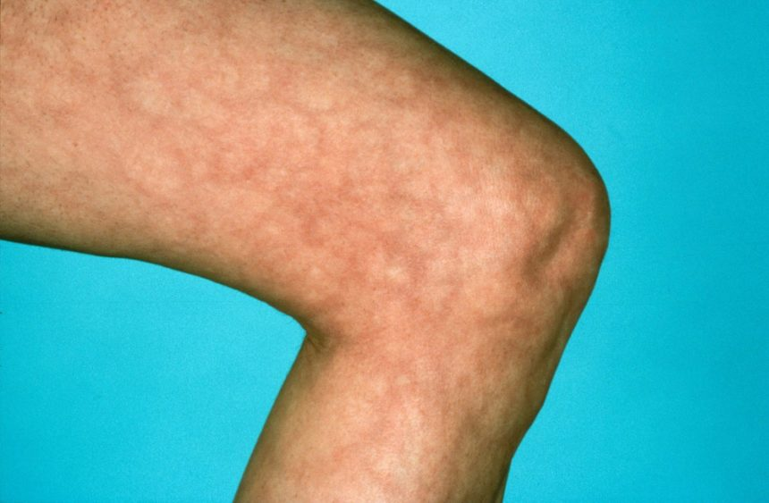 Patients with MC HCV most commonly present with palpable purpura, arthralgia, and weakness.1 Purpura usually occurs as petechial lesions in the legs that can extend to the abdomen.3 Rarely, they may reach the upper extremities. Arthralgias typically affect hand joints, wrists, and knees, without signs of inflammation or evidence of bone erosion. Although weakness and fatigue are subjective, patients experience sensory symptoms (eg, paresthesia) before motor weakness. Other manifestations of MC may include livedo reticularis, Raynaud's phenomenon, and digital ischemia and necrosis.3 MC is typically diagnosed on the basis of patient history, clinical manifestations, and laboratory findings. Findings suggestive of MC include the presence of cryoglobulins; RF positivity; false elevation of white blood cells or platelets; detection of hypocomplementemia, particularly low C4; and presence of markers of chronic inflammation, such as elevated erythrocyte sedimentation rate and C-reactive protein.1,3 Photo Credit: Medical Images RM/BOB TAPPER.