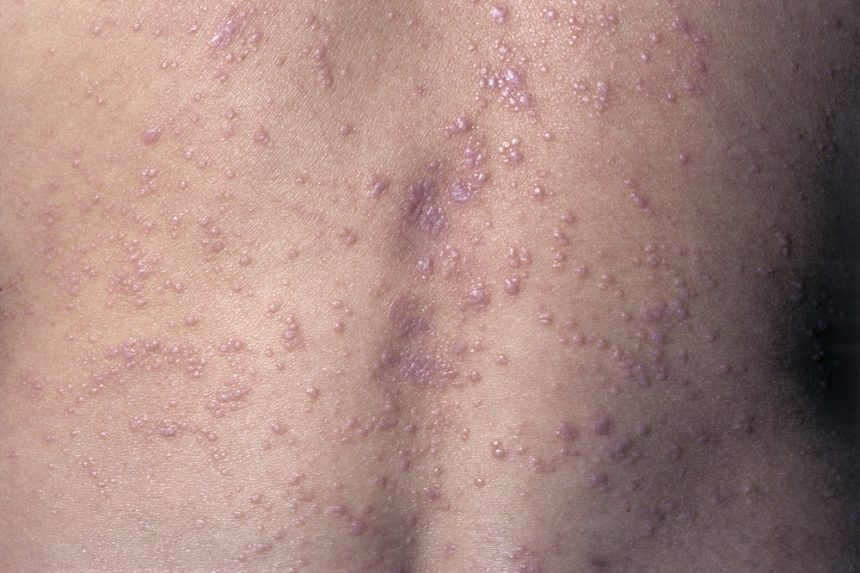 Lichen planus (LP) is a chronic, inflammatory, papulosquamous, autoimmune disease that is estimated to occur in <1% of the general population.1 It appears to be more common in individuals with HCV, with 1 study reporting a 4.80 times higher prevalence in this population.4 LP can affect the skin, scalp, genitals, oral cavity and other mucus membranes, and nails. Its etiology is not well understood, but genetic, environmental, and lifestyle factors are thought to play a role. An immune mechanism directed by activated CD81 T cells against basal keratinocytes has been suggested to play a major role in the pathophysiology of the disease, with cytokines such as tumor necrosis factor-α, interferon-γ, and interleukin-6 and interleukin-8 thought to contribute in the setting of HCV infection.1 Cutaneous LP is a self-limited disease that usually resolves within 6 to 12 months and mainly affects adults. Photo Credit: ISM/CID.
