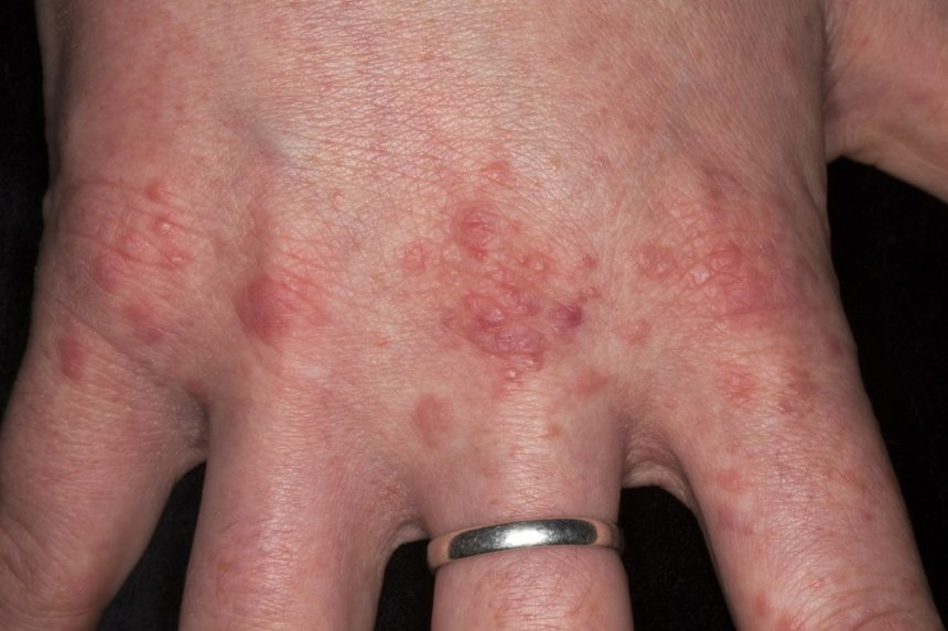 Classic LP typically presents as pruritic, polygonal, violaceous flat-topped papules or plaques on the flexural surfaces of the wrists and forearm and/or extensor surface of the hands, ankles, and shins.1,4,5 Although LP can affect any part of the body, the face is rarely involved.5 LP lesions typically have a symmetric distribution. Papules often appear dry and shiny, with branny scales that form fine, whitish streaks (ie, Wickham's striae).5 Depending on lesion location, patients may report pain, itching, hair loss, scalp discoloration, and nail damage or loss. LP is diagnosed on the basis of history and physical examination, including visual inspection of the entire cutaneous surface and oral cavity. A punch or shave biopsy extending to the middermis can help make a definitive diagnosis. Photo Credit: Hercules Robinson.