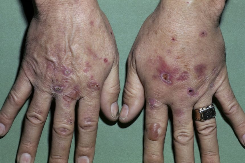 Porphyria is a group of disorders that result from abnormalities in enzymatic activity during heme and porphyrin synthesis. Although porphyria cutanea tarda (PCT) is the most common form of these disorders, it is rare, affecting an estimated 1 in 25,000 people in the United States.1 PCT results when there is a deficiency of the enzyme uroporphyrinogen decarboxylase (UROD), the fifth enzyme in the biosynthesis of heme, resulting in excess build-up of porphyrins in the liver and skin.6 PCT can be subdivided into 2 types: sporadic (type 1), making up 80% of cases, and familial (type 2), making up 20% of cases. Those with familial PCT have a mutation in their UROD gene, whereas those with sporadic PCT do not. Regardless of type, PCT usually remains latent until an activating factor is present, such as HCV infection. Worldwide studies have shown the prevalence of sporadic PCT among patients with HCV to range from >70% to about 50%.1 The mechanism through which HCV infection leads to PCT remains unknown.1,6 Photo Credit: ISM/CID.